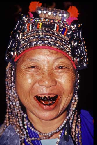 akha with black teeth-AsiaPhotoStock